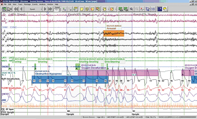 Natus® SleepWorks™ Software